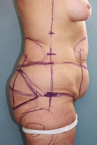 Photo - Abdominoplasty Tummy Tuck - Sydney - 1a - BEFORE SURGERY PIC