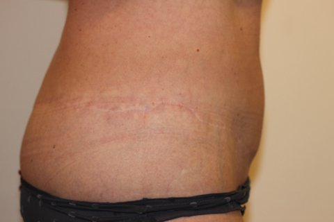 Photo - Abdominoplasty Tummy Tuck - Sydney - 1b - AFTER SURGERY PIC