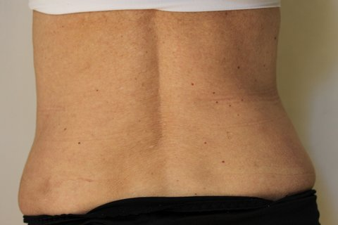 Photo - Abdominoplasty Tummy Tuck - Sydney - 2d - AFTER SURGERY PIC