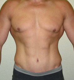 Photo - Gynecomastia Man Boobs Surgery Sydney - 1b - AFTER SURGERY PIC - SMALL - SAMPLE ONLY.jpg