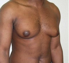 Photo - Gynecomastia Man Boobs Surgery Sydney - 2a - BEFORE SURGERY PIC - SMALL - SAMPLE ONLY.jpg
