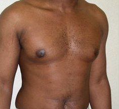 Photo - Gynecomastia Man Boobs Surgery Sydney - 2b - AFTER SURGERY PIC - SMALL - SAMPLE ONLY.jpg