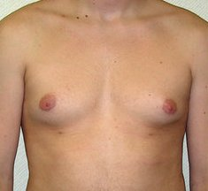 Photo - Gynecomastia Man Boobs Surgery Sydney - 3a - BEFORE SURGERY PIC - SMALL - SAMPLE ONLY.jpg