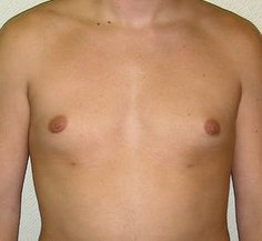 Photo - Gynecomastia Man Boobs Surgery Sydney - 3b - AFTER SURGERY PIC - SMALL - SAMPLE ONLY.jpg