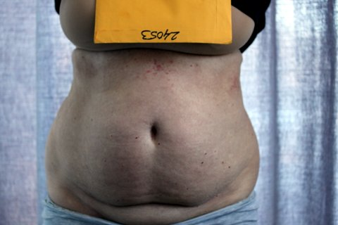 Photo - Liposuction Liposculpture Sydney - 1a - BEFORE SURGERY PIC