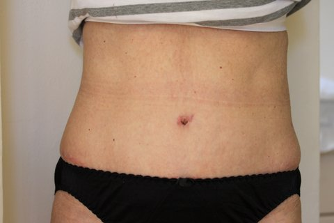 Photo - Liposuction Liposculpture Sydney - 1b - AFTER SURGERY PIC
