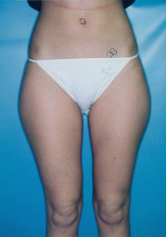 Photo - Liposuction Liposculpture Sydney - 2a - BEFORE SURGERY PIC - SMALL - SAMPLE ONLY.jpg