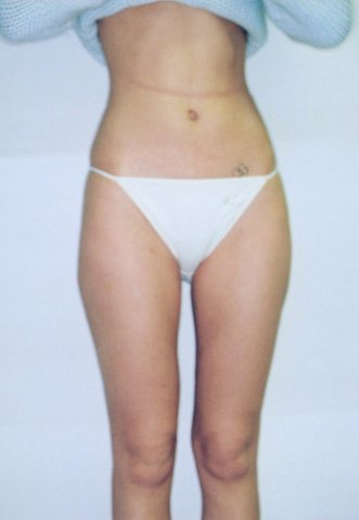 Photo - Liposuction Liposculpture Sydney - 2b - AFTER SURGERY PIC - SMALL - SAMPLE ONLY.jpg