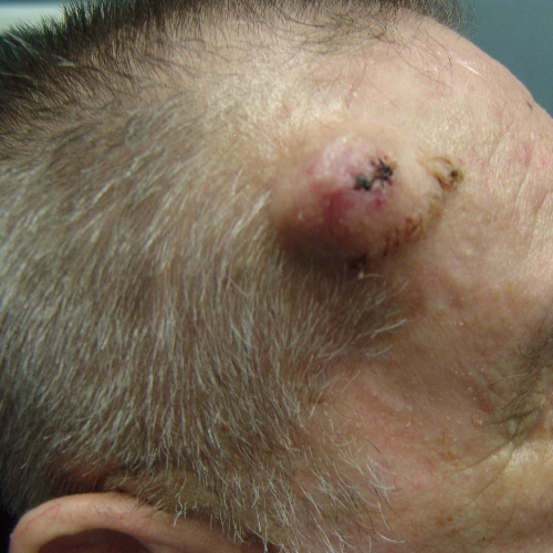 Photo - Skin Cancer - Malignant Melanoma Sydney 2 - SAMPLE ONLY.jpg