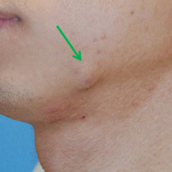 Photo - Skin Rejuvenation - Minor Surgery 1a - Mole Skin Lesion - Sample Only.jpg