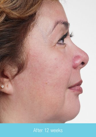 Photo - Skin Rejuvenation - Obagi Skin Cream Sydney - 3b - SMALL - NU-DERM_RT_wk12.jpg