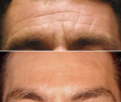 Photo - Wrinkle Elliminating Injections 2 - SAMPLE ONLY.jpg