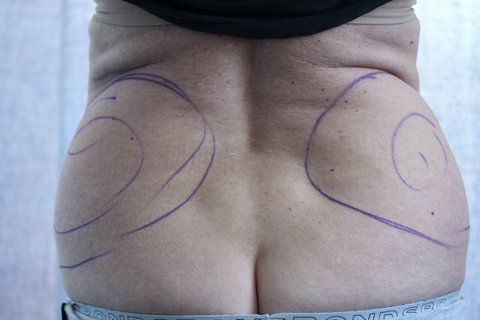 Photo - Abdominoplasty Tummy Tuck - Sydney - 2c - BEFORE SURGERY PIC