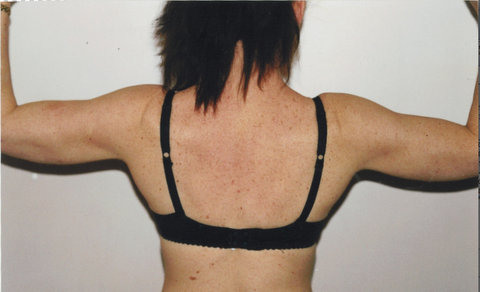 Photo - Arm & Shoulder Reshaping Surgery Brachioplasty Sydney - 2b - AFTER SURGERY PIC.jpg