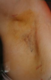 Photo - Auxillary Hyperhidrosis Surgery Sydney - 1b - AFTER SURGERY PIC - SMALL.JPG