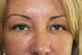 Photo - Blepharoplasty - MORE INFO - 1a - BEFORE SURGERY