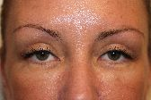 Photo - Blepharoplasty - MORE INFO - 1b - AFTER SURGERY