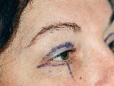 Photo - Blepharoplasty - MORE INFO - 2a - BEFORE SURGERY