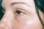 Photo - Blepharoplasty - MORE INFO - 2b - AFTER SURGERY
