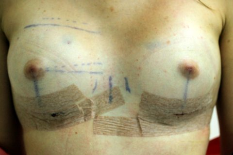 Photo - Breast Augmentation BAM Revcovery Technique 1b.JPG