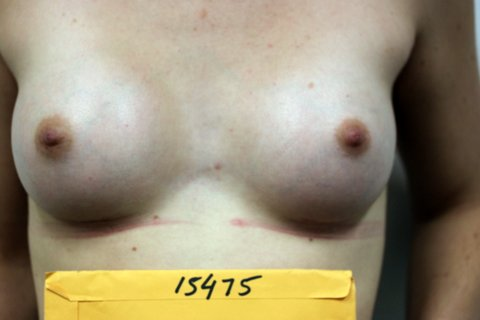Photo - Breast Augmentation BAM Revcovery Technique 1c.JPG