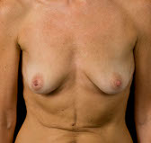 Photo - Breast Augmentation MORE DETAILS - OLD - 1a BEFORE - ANATOMICAL PROSTHESIS