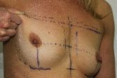 Photo - Breast Augmentation MORE DETAILS - OLD - 1a - PINCH TEST