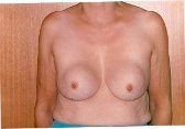 Photo - Breast Augmentation MORE DETAILS - OLD - 1a - REMOVAL OF PROSTHESES.jpg
