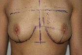 Photo - Breast Augmentation MORE DETAILS - OLD - 1a -Results Shape of prosthesis and projection.JPG