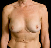 Photo - Breast Augmentation MORE DETAILS - OLD - 1b AFTER - ANATOMICAL PROSTHESIS