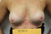 Photo - Breast Augmentation MORE DETAILS - OLD - 1b AFTER - Prosthesis Round or anatomical.JPG