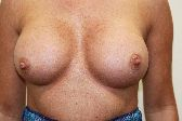Photo - Breast Augmentation MORE DETAILS - OLD - 1d -Results Shape of prosthesis and projection.JPG