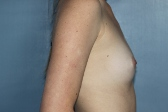 Photo - Breast Augmentation MORE DETAILS - OLD - 2a BEFORE - Prosthesis Round or anatomical.JPG