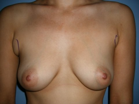 Photo - Breast Augmentation Surgery Sydney - 1a - BEFORE SURGERY PIC - SMALL- Patient 2 pre op 2 a before.JPG