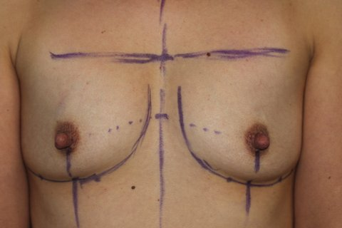 Photo - Breast Augmentation Surgery Sydney - 2a - BEFORE SURGERY PIC