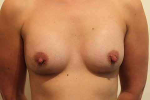 Photo - Breast Augmentation Surgery Sydney - 2b - AFTER SURGERY PIC