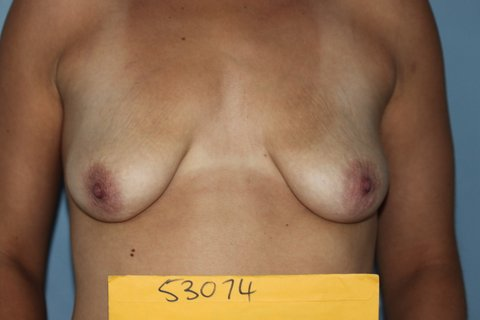 Photo - Breast Augmentation Surgery Sydney - 3a - BEFORE SURGERY PIC
