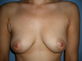 Photo - Breast Augmentation Surgery Sydney - 4a - HIGH PROFILE.JPG