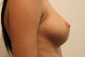 Photo - Breast Augmentation Surgery Sydney - 4d - HIGH PROFILE.JPG