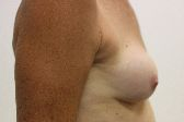 Photo - Breast Augmentation Surgery Sydney - 4e - REDO BAM.JPG