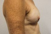 Photo - Breast Augmentation Surgery Sydney - 4f - REDO BAM.JPG