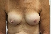 Photo - Breast Augmentation Surgery Sydney - 4g - REDO BAM.JPG