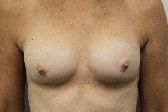 Photo - Breast Augmentation Surgery Sydney - 4h - REDO BAM.JPG