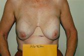 Photo - Breast Augmentation Surgery Sydney - 4i - REMOVAL.jpg