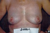 Photo - Breast Augmentation Surgery Sydney - 4j - REMOVAL.jpg