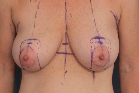 Photo - Breast Reduction - 3a BEFORE 3a.JPG