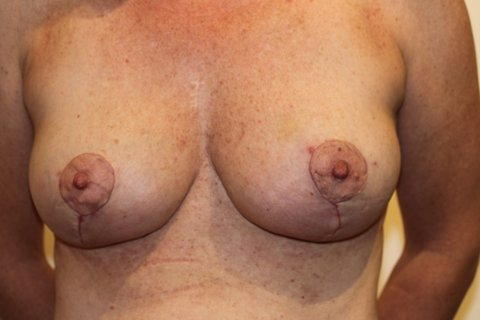 Photo - Breast Reduction - 3b AFTER 3b.JPG