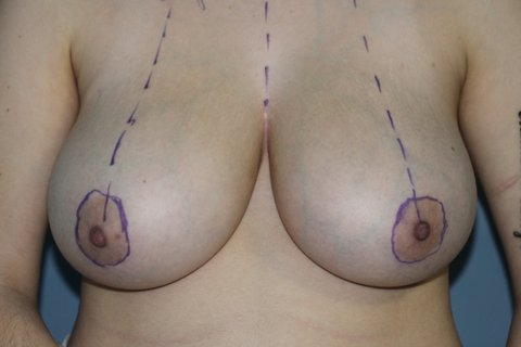 Photo - Breast Reduction - New - 4a BEFORE.JPG