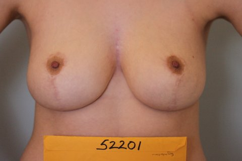 Photo - Breast Reduction - New - 4b AFTER.JPG