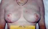 Photo - Breast Reduction - OLD - MORE INFO - 1b - AFTER SURGERY.jpg